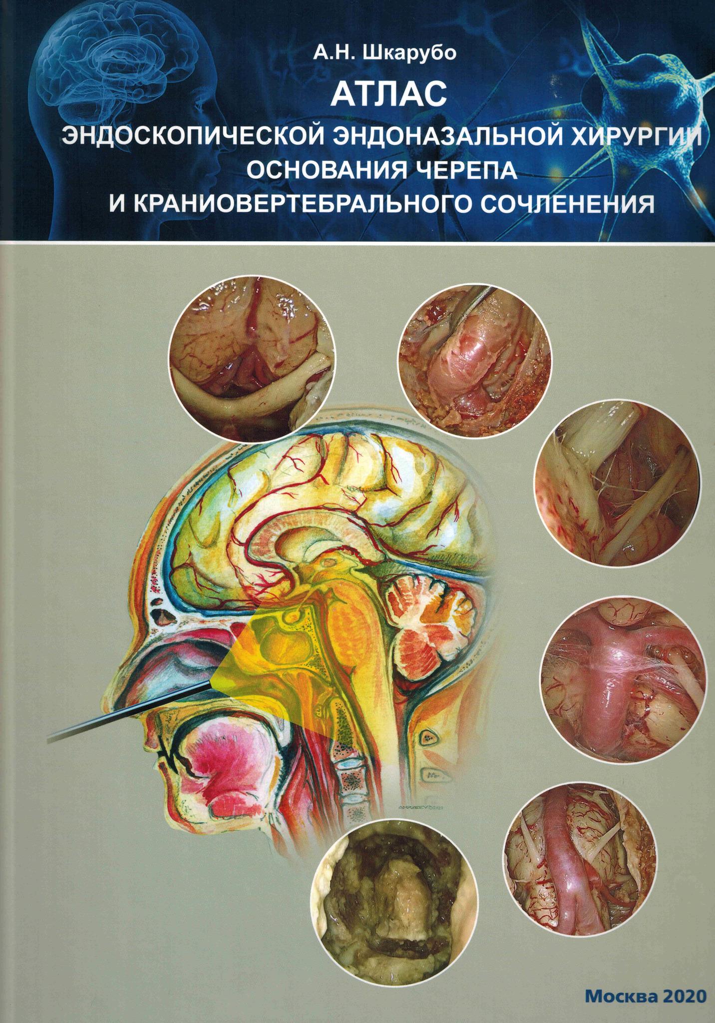 Новинки Атлас эндоскопической эндоназальной хирургии основания черепа и краниовертебрального сочленения atlas_endosk_endonaz.jpg