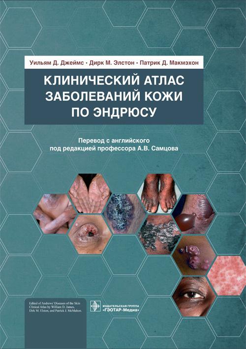 Новинки Клинический атлас заболеваний кожи по Эндрюсу kazkpe.jpg