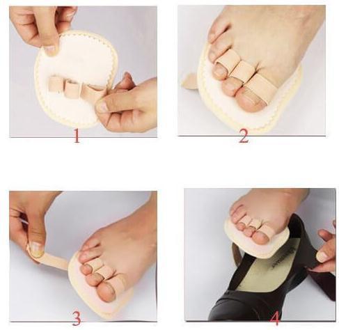 Подушечки на 3 пальца для лечения невромы Мортона, 1 пара