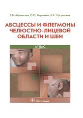 Абсцессы и флегмоны челюстно-лицевой области и шеи. Атлас