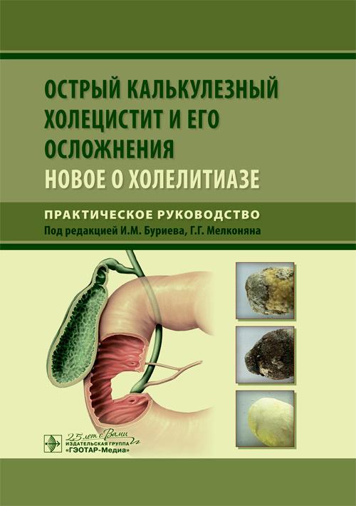 Хирургия Острый калькулезный холецистит и его осложнения: новое о холелитиазе ostr_kalkulezn.jpg