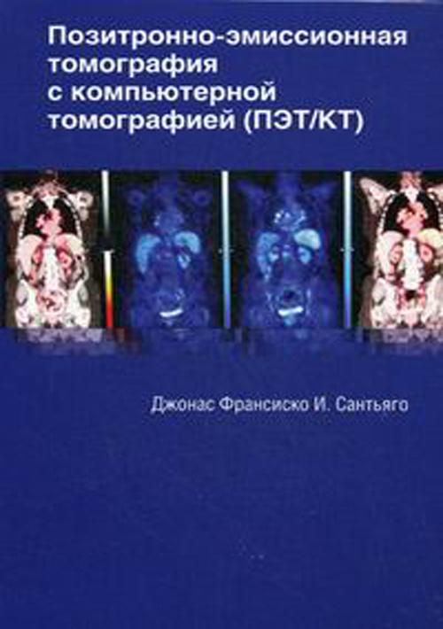 Книги по ультразвуковому исследованию Позитронно-эмиссионная томография с компьютерной томографией pat.jpg
