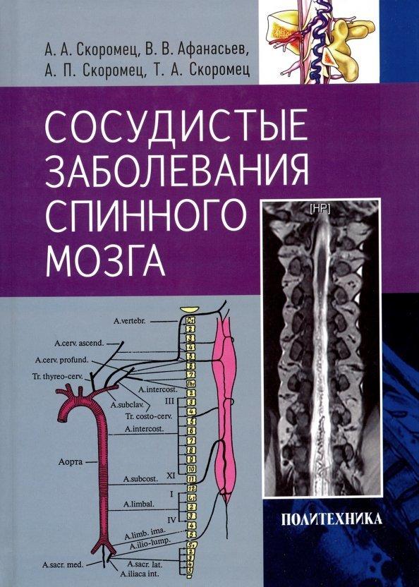 Медицинская литература и учебники Сосудистые заболевания спинного мозга (Скоромец) skoromec_sosud.jpg