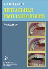 Дентальная имплантология. Основы теории и практики
