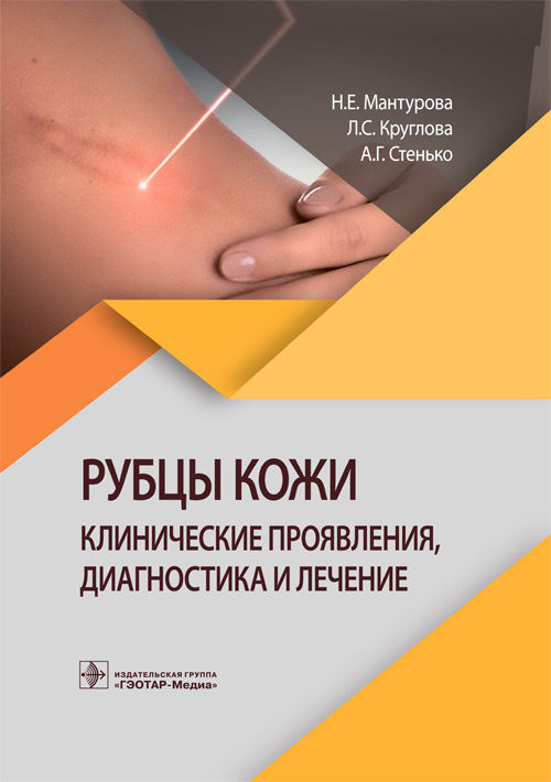 Новинки Рубцы кожи. Клинические проявления, диагностика и лечение rubcy_kozhi.jpg