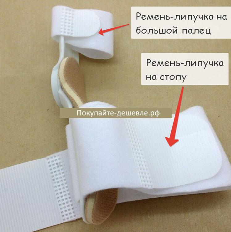 Сменный комплект ремней-липучек для 1 шт. вальгусной шарнирной шины