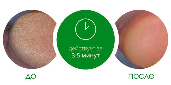 Средство для удаления натоптышей Callus Eliminator, Be Natural, 532 мл