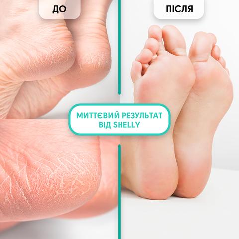 Гель-кератолітик для видалення мозолів і натоптишів М'яке лезо Shelly 200 мл + спа-шкарпетки для педикюру + пемза В ПОДАРУНОК! (2)