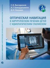 Оптическая навигация в хирургическом лечении детей с идиопатическим сколиозом