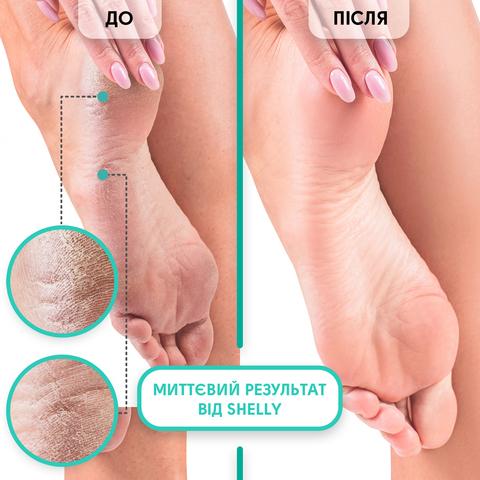 Набір для прискореної підготовки до педикюру та розм'якшення  грубої шкіри стоп Shelly (2)
