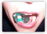 Зажимное устройство для изоляции зубов (Super-Clamp)