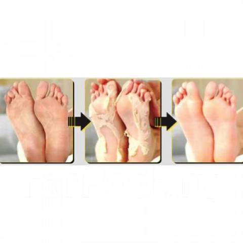 Пилинг для ног Mijin Soft Miracle Foot Peeling Pack .