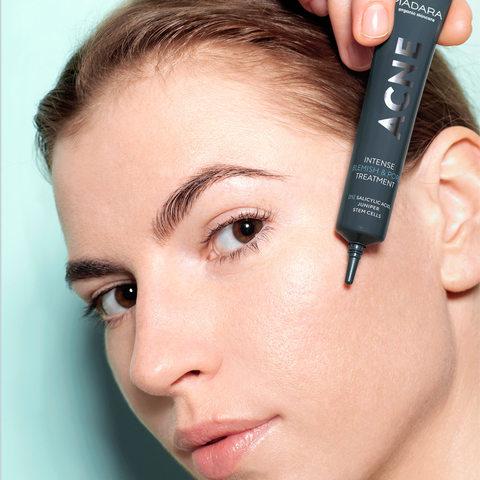 MADARA Корректирующий органический лосьон ACNE для проблемной кожи против несовершенств и расширенных пор, 20 мл