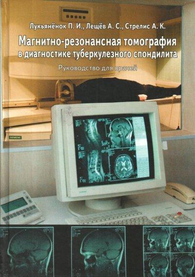 Каталог Магнитно-резонансная томография в диагностике туберкулезного спондилита 22.jpg
