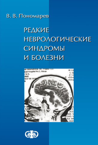 Редкие неврологические синдромы и болезни  (электронная версия в формате PDF)  // Пономарев В.В.