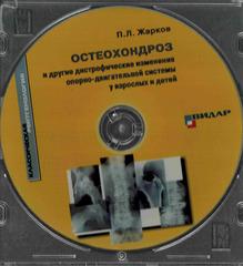 CD Остеохондроз и другие дистрофические изменения опорно-двигательной системы у взрослых и детей