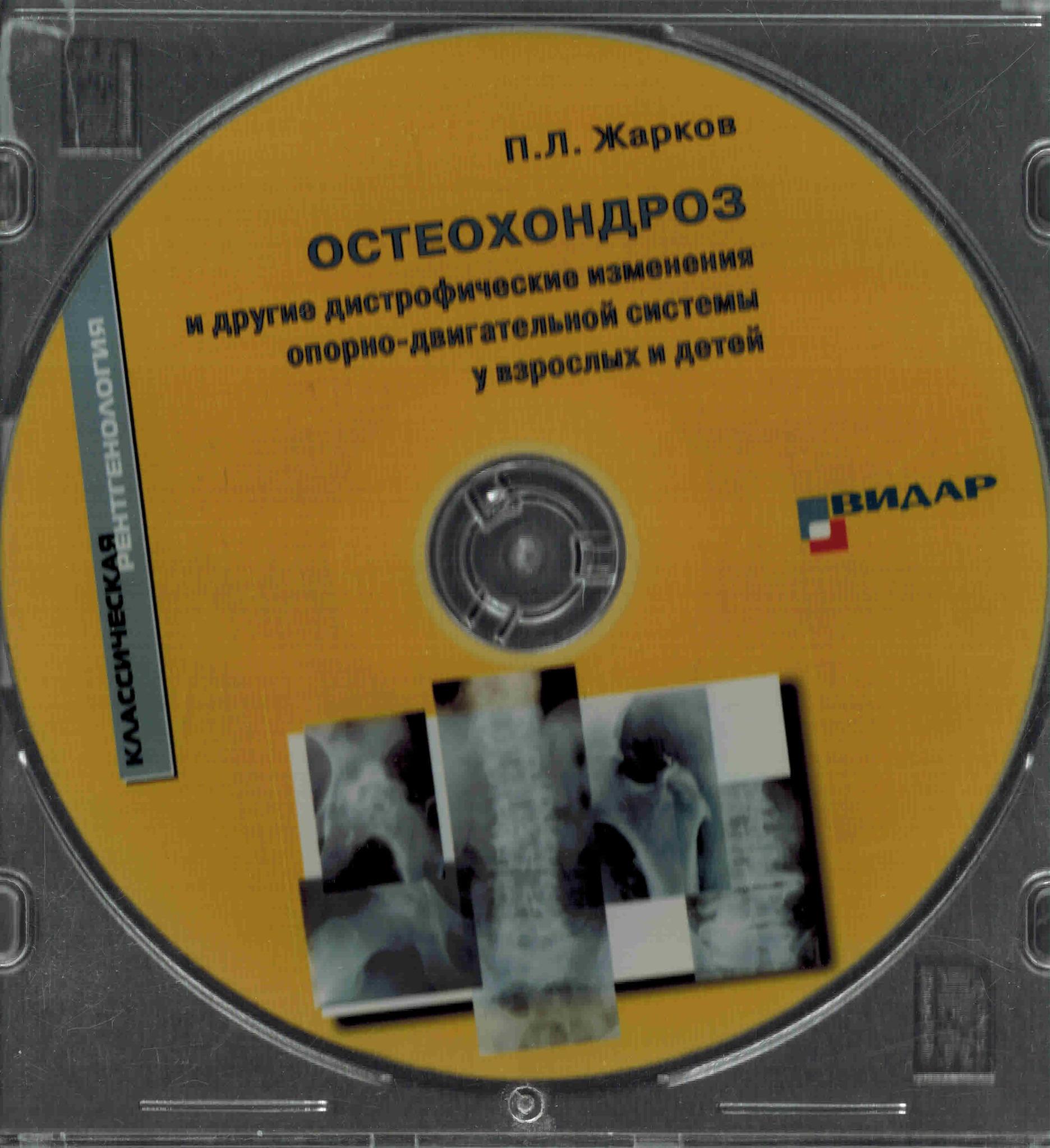 Новинки CD Остеохондроз и другие дистрофические изменения опорно-двигательной системы у взрослых и детей osteohonroz_cd.jpg