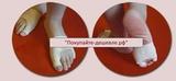 Защита суставов большого пальца и мизинца из спандекса, 1 пара