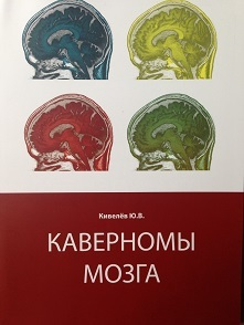 Нейро Каверномы мозга Каверномы_мозга3.JPG