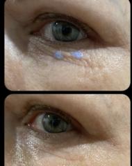 COSMEDIX Сыворотка для кожи вокруг глаз с жидкими кристаллами Opti Crystal