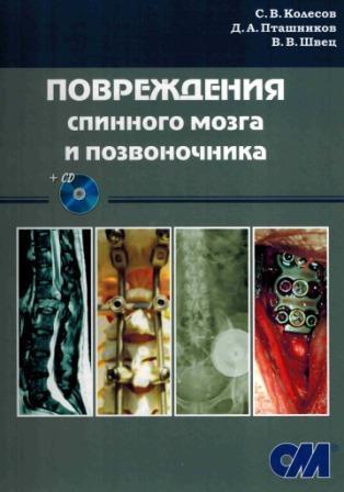Новинки Повреждения спинного мозга и позвоночника + CD povr_spinn_mozga_i_pozv.jpg