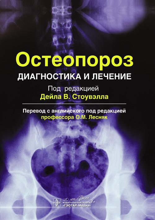 Общее Остеопороз. Диагностика и лечение Остеопороз._Диагностика_и_лечение.jpg