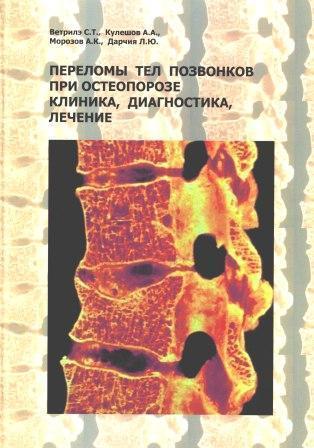 Позвоночник Переломы тел позвонков при остеопорозе: клиника, диагностика, лечение переломы_тел_позвонков_обложка.jpg