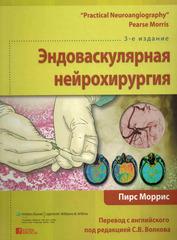 Эндоваскулярная нейрохирургия