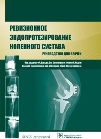 Конечности Ревизионное эндопротезирование коленного сустава: руководство Ревизионное_эндопротезирование_коленного_сустава._Руководство.jpg