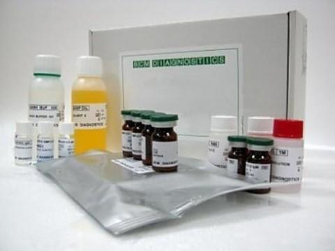 IgA-антитела к токсоплазме,Набор реагентов для количественного определения IgA антител к токсоплазме методом иммуноферментного анализа. Toxoplasma gondii