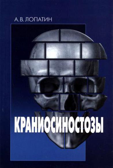 Анестезиология и реанимация Краниосиностозы Kraniosinostozy.jpg