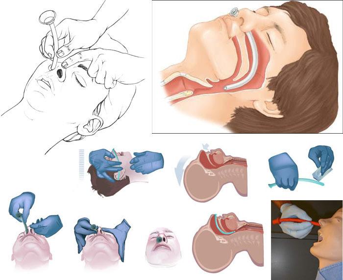 Назофарингеальный воздуховод (NAR) (трубка для дыхательных путей)