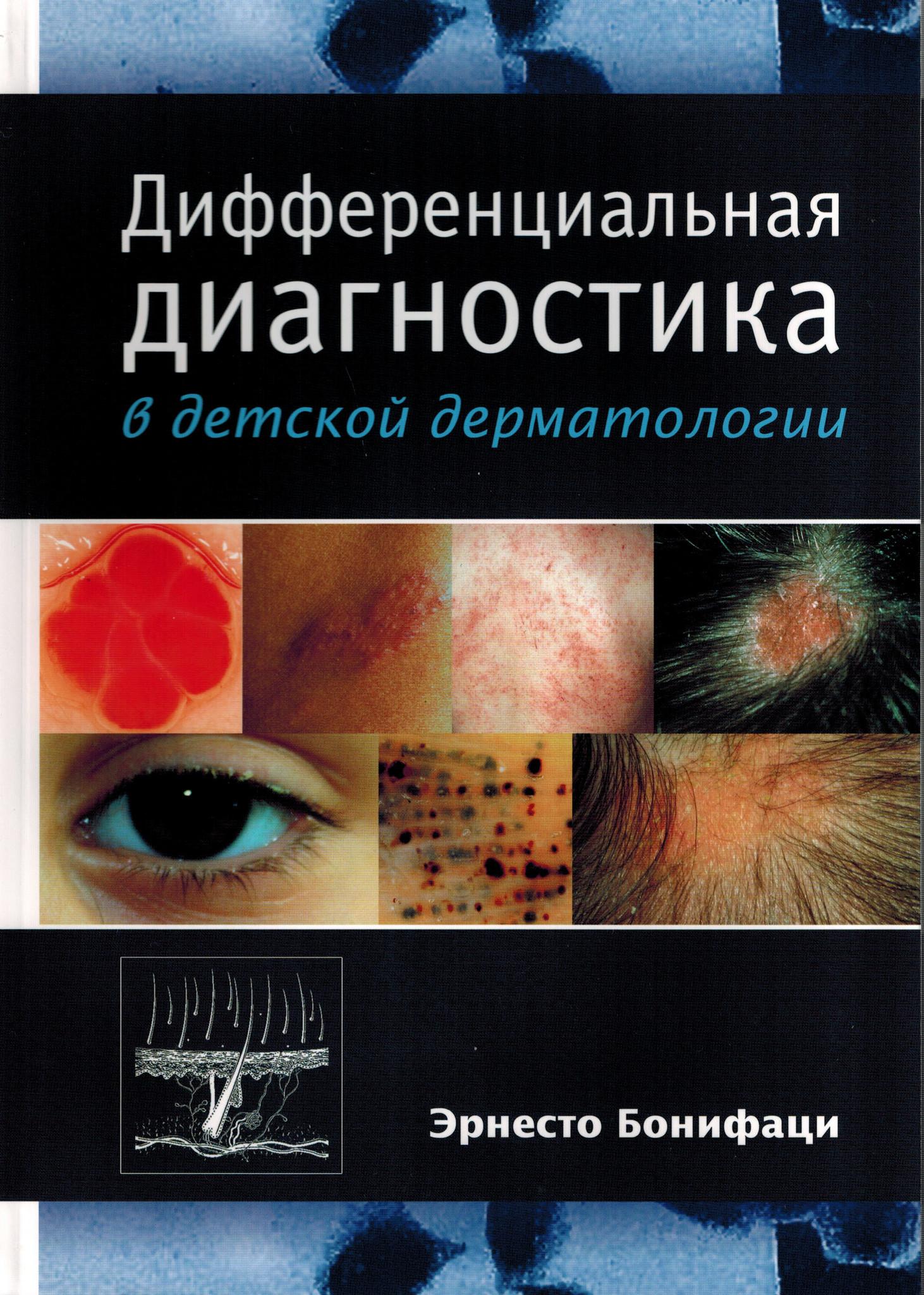 Дерматозы Дифференциальная диагностика в детской дерматологии dd1.jpg