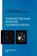 Злокачественные опухоли головного мозга