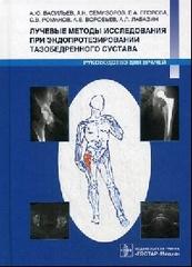 Лучевые методы исследования при эндопротезировании тазобедренного сустава