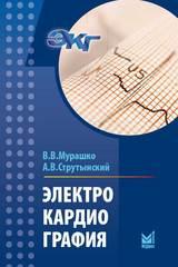 Электрокардиография (Мурашко, Струтынский)