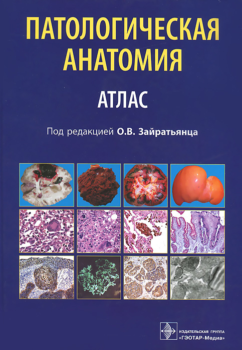 Под заказ Патологическая анатомия : атлас : учеб. пособие для студентов медицинских вузов и последипломного образования dc859c3c55d54b04b8d1ceca8b69ddb3.jpeg