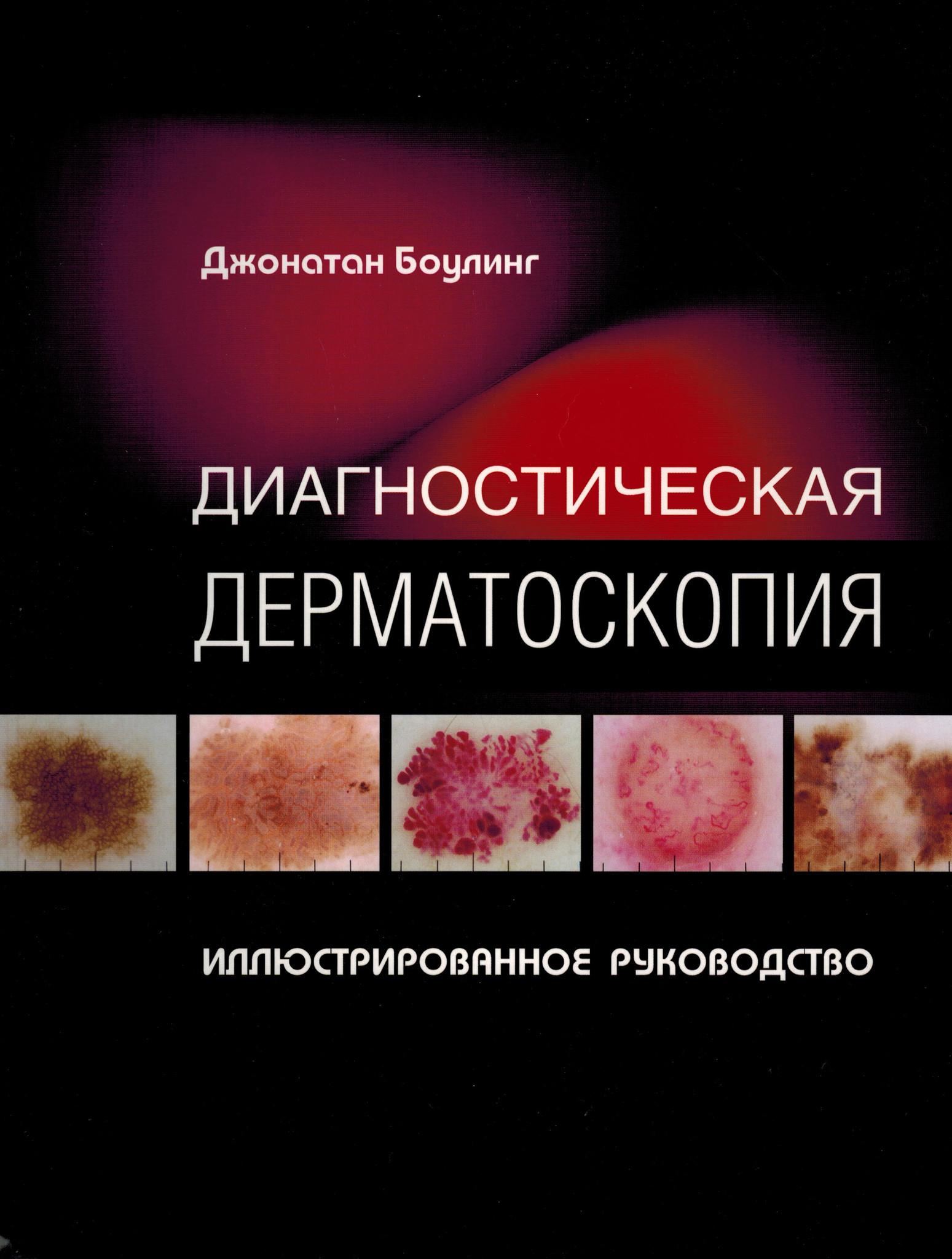 Дерматоскопия Диагностическая дерматоскопия dd3.jpg