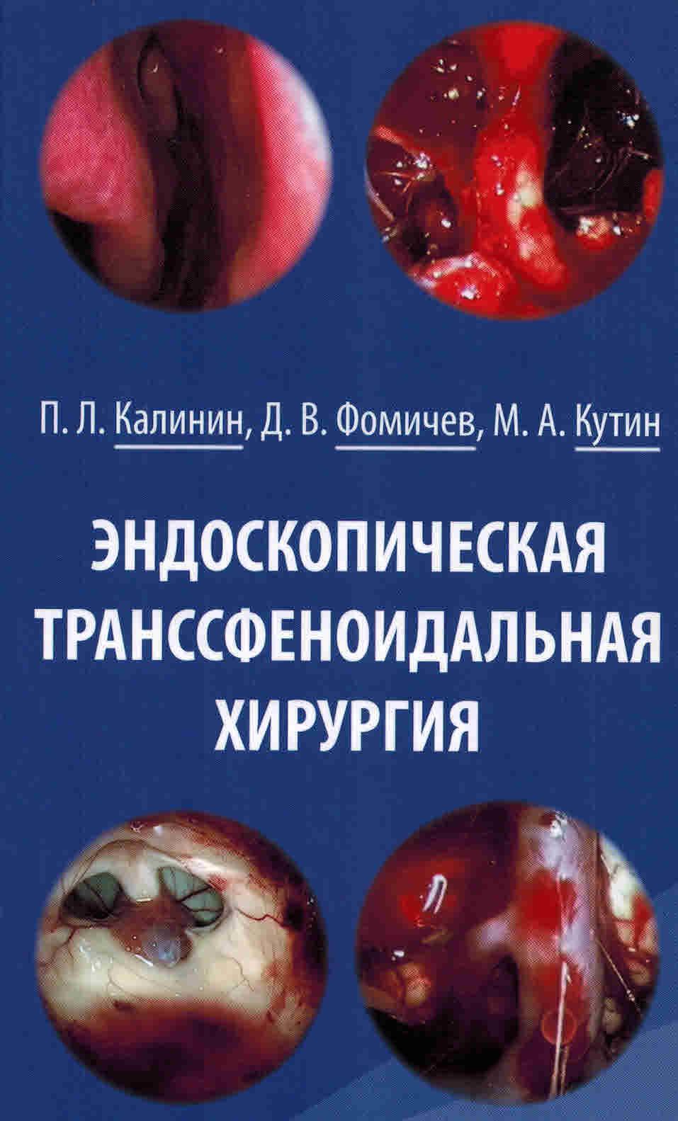 Хирургия Эндоскопическая транссфеноидальная хирургия endoskop_transsf_hir.jpg