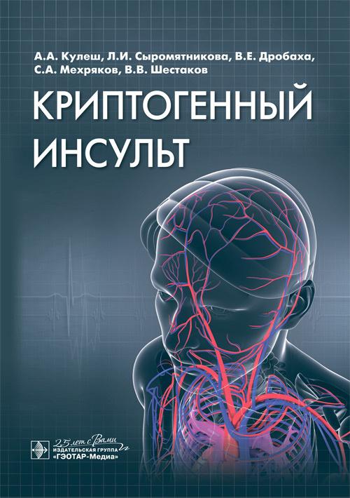 Книги по инсультам Криптогенный инсульт: руководство kriptog.jpg