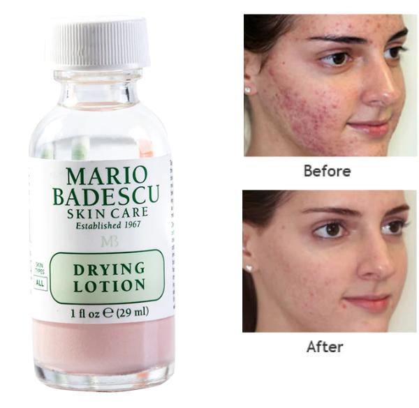 Mario Badescu Drying Lotion средство для лечения акне 29мл