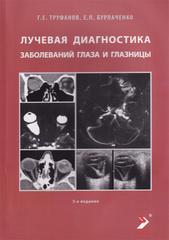 Лучевая диагностика заболеваний глаза и глазницы