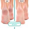 Пінний експрес-розм'якчувач для педикюру М'яке лезо Shelly 150 мл + спа-шкарпетки для педикюру + пемза В ПОДАРУНОК! (3)
