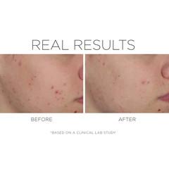 COSMEDIX Увлажняющий крем для проблемной кожи Shineless Moisturizer