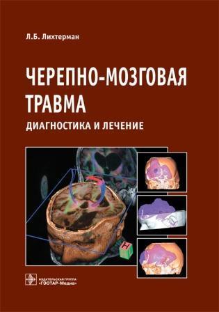 ЧМТ Черепно-мозговая травма: диагностика и лечение лихтерман_обложка.jpg
