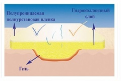 Suprasorb H Супрасорб Н гидроколлоидная повязка