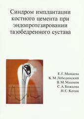 Синдром имплантации костного цемента при эндопротезировании тазобедренного сустава