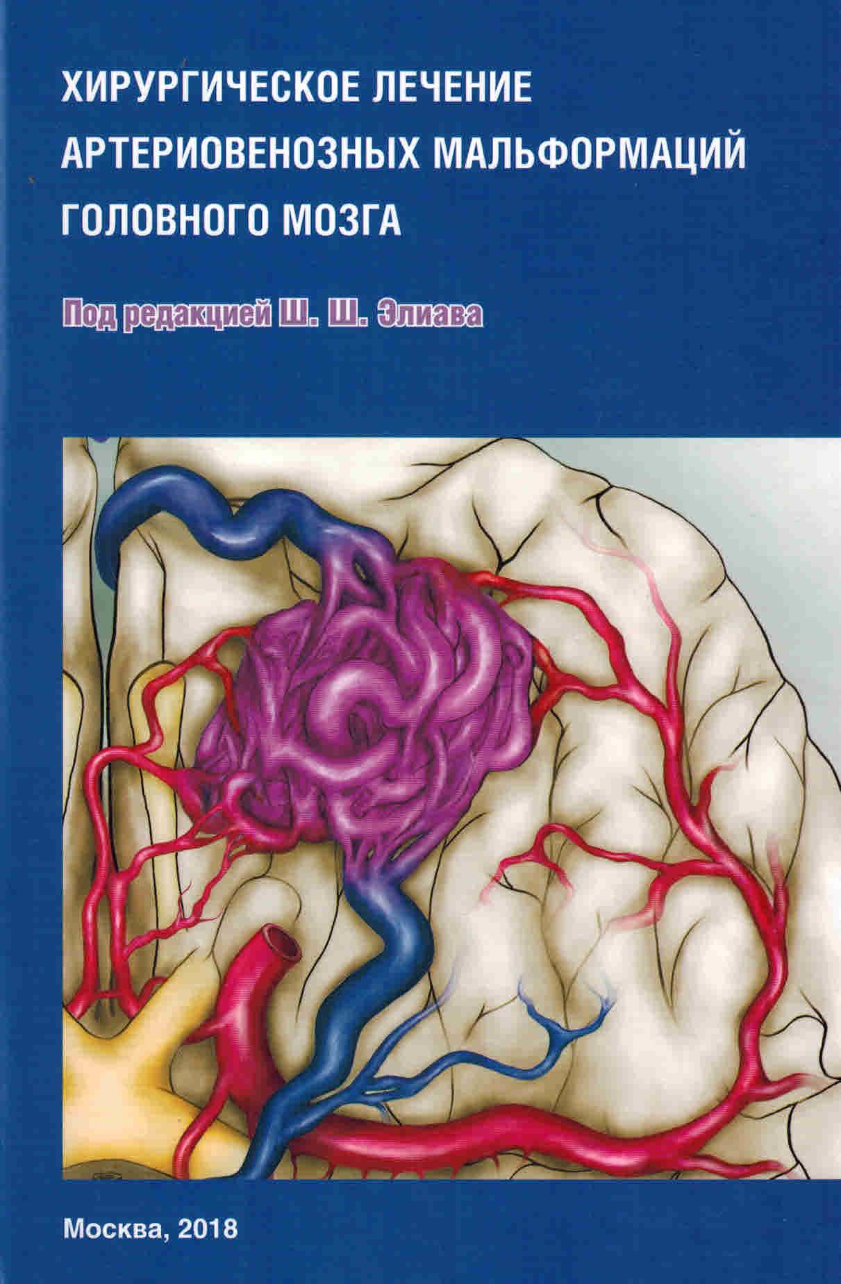 Книги по инсультам Хирургическое лечение артериовенозных мальформаций головного мозга hir_lech_art_mal_gol_moz.jpg