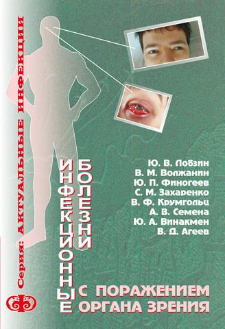 Инфекционные болезни с поражением органа зрения (клиника, диагностика): Руководство для врачей  (электронная версия в формате PDF) / Лобзин Ю.В., Волжанин В.М., Финогеев Ю.П.
