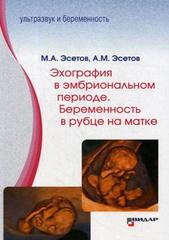 Эхография в эмбриональном периоде. Беременность в рубце на матке